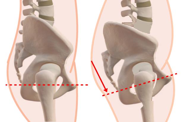 骨盤歪み原因尾てい骨腰骨位置