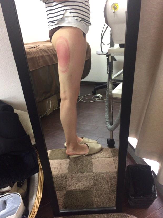 冷凍痩身後の脚