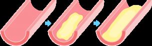 動脈硬化図